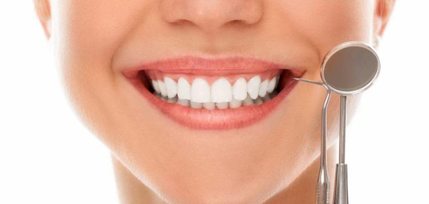 sourire avec dents blanches